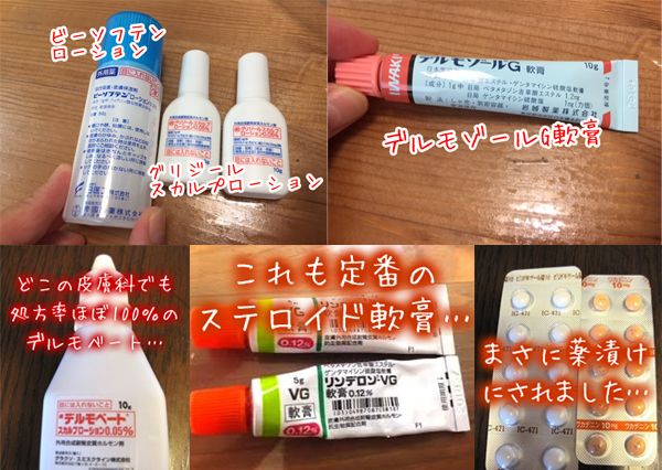 皮膚科薬漬けステロイド薬・頭皮湿疹.jpg