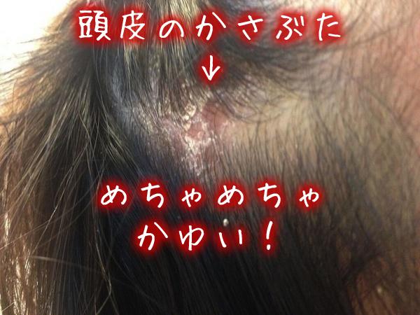 頭皮のかさぶたが〝かゆい〟対処方法.jpg
