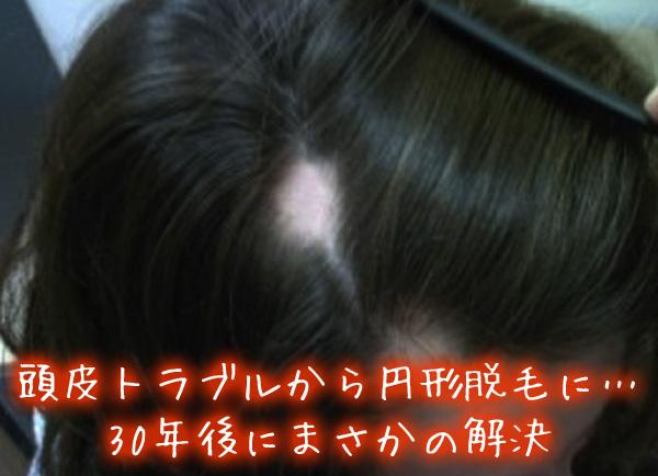 頭皮トラブルから円形脱毛に…30年後にまさかの解決.jpg