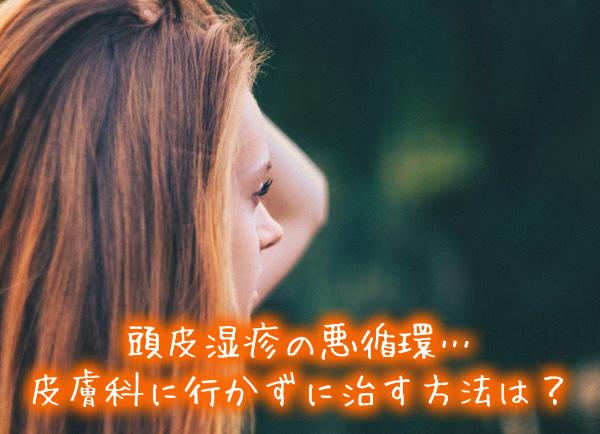 頭皮湿疹の悪循環…皮膚科に行かずに治す方法は?.jpg