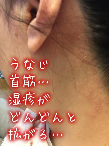うなじ・首筋に湿疹が拡がる。かゆい.jpg