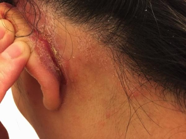 耳の後ろ炎症ひどすぎる.jpg