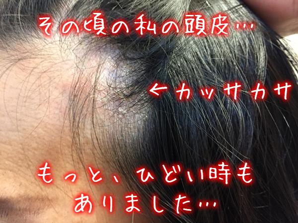 頭皮がカッサカサのガサガサでフケ.jpg