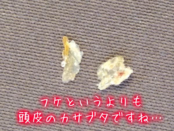 頭皮のカサブタ・フケ巨大大きい.jpg