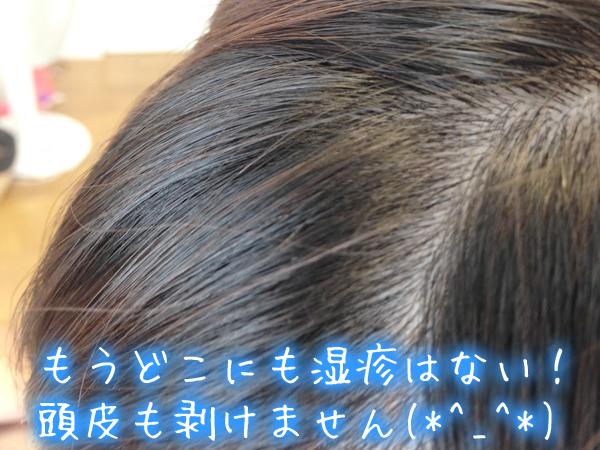 頭皮湿疹が完治。頭皮も剥けない.jpg